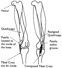 Tibial Tuberosity Transposition