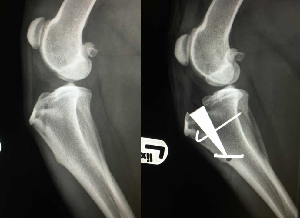 MMP pre and post op x-ray